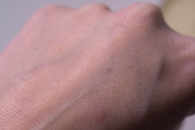 Birthmark, concealer blended